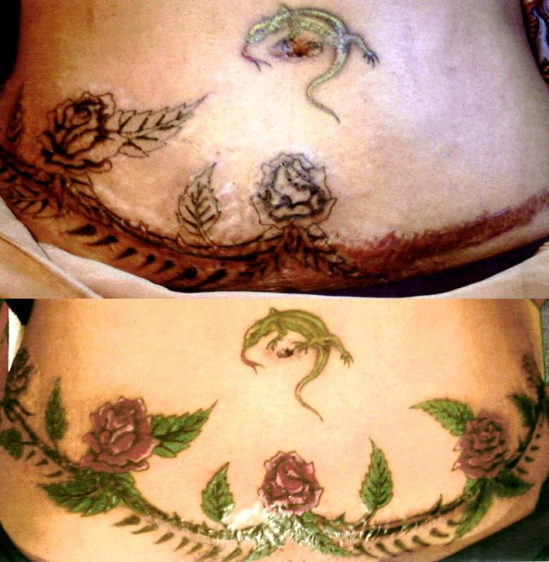 tattoo sur cicatrice